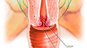 صورة: التعرف على أعراض سرطان عنق الرحم