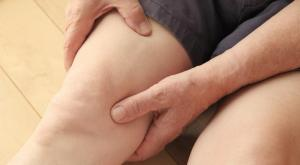 صورة: تشخيص الوذمة الشحمية أو متلازمة الدهون المؤلمة