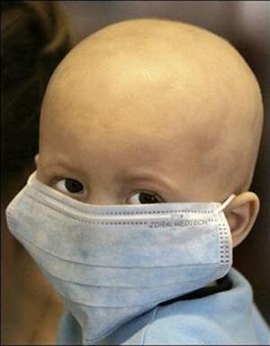 صورة: الأورام اللمفاوية عند الأطفال وأهمية الكشف المبكر عنها